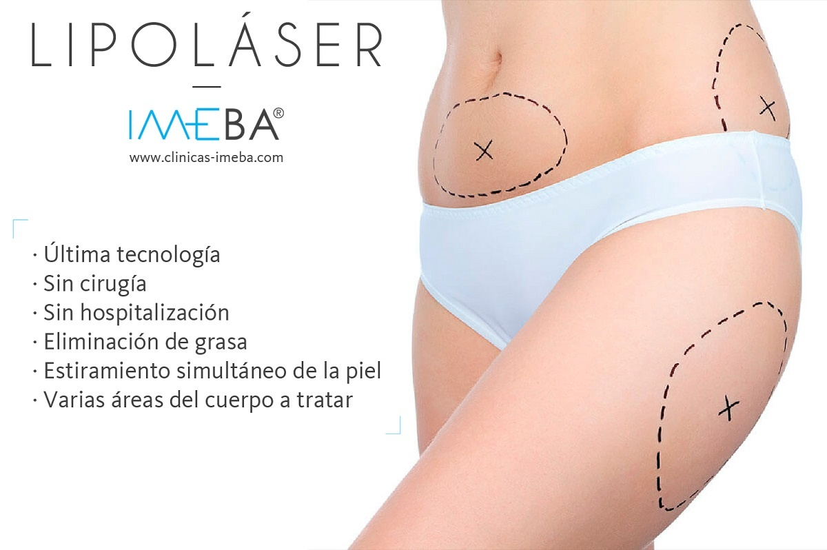 ¿Qué es el lipoláser? | Clínicas IMEBA Palma de Mallorca | Eliminar la grasa en Mallorca
