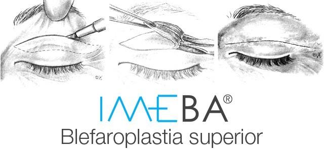 Blefaroplastia en Mallorca | Operación de párpados clínicas IMEBA Palma